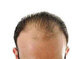 Haarausfall an der Vorderseite des Kopfes
