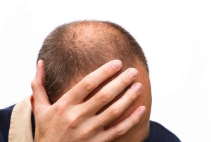 Kosten einer Haartransplantation