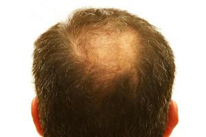 Vor einer Haartransplantation am Hinterkopf